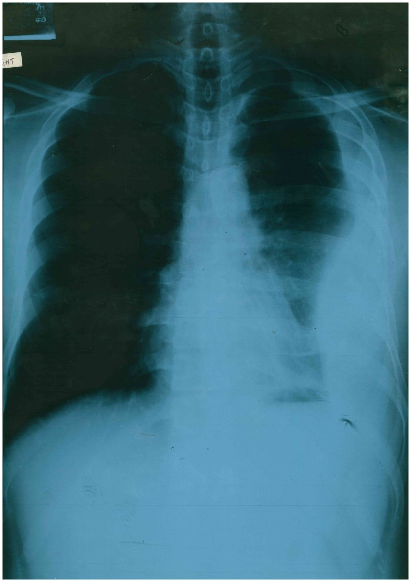 CRX # 40317. The x-ray revealing fluid in my left lung. The image was produced 19 November, 2012.